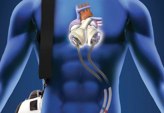 Artificial Heart Controller