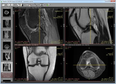 Orthopedic Imaging System