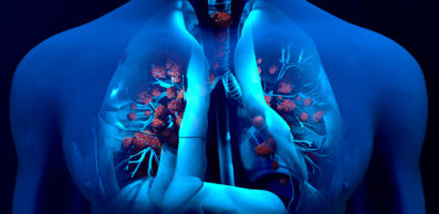 graphic of lungs